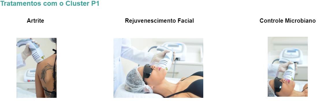 Artrite Rejuvenescimento Facial Controle Microbiano