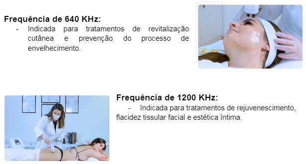 Frequência de 640 KHz: Indicada para tratamentos de revitalização cutânea e prevenção do processo de envelhecimento. Frequência de 1200 KHz: Indicada para tratamentos de rejuvenescimento, flacidez tissular facial e estética íntima. Frequência de 2400 KHz: Indicada para tratamentos mais profundos como melhora do contorno corporal, celulite e fibrose.